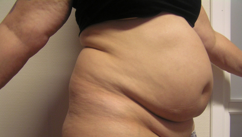 fettsugning venusberg före och efter